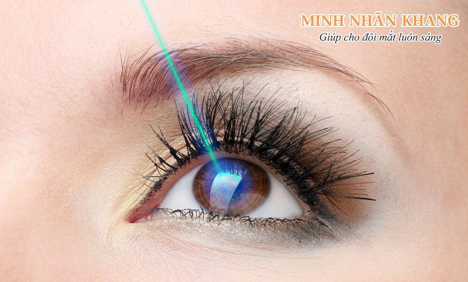 Cách điều trị thoái hóa điểm vàng bằng phương pháp phẫu thuật laser ( Laser quang đông)